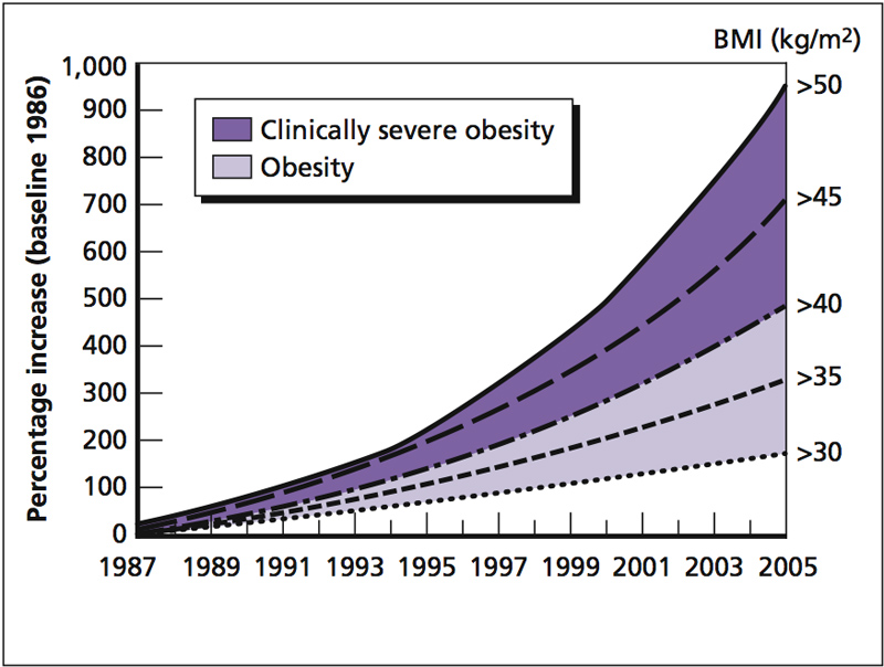 Environmental Factors and Obesity