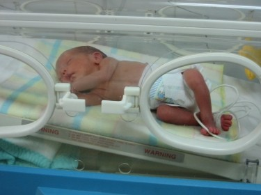 premature baby in nicu